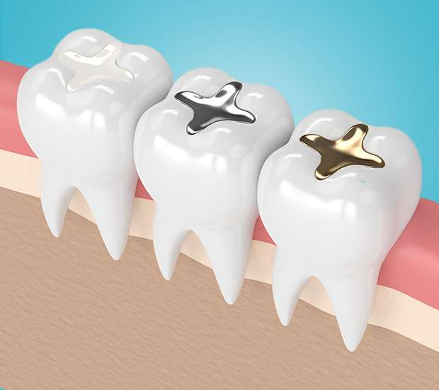 Altamonte Springs Composite Fillings