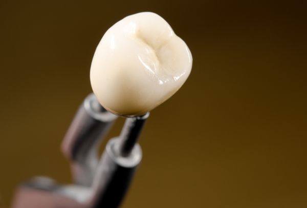 What Are Dental Crowns And How Do They Work?